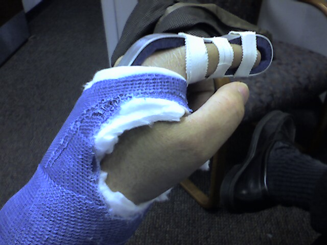broken wrist comparison of broken w My Broken Finger No video of PatBroken Index Finger Cast